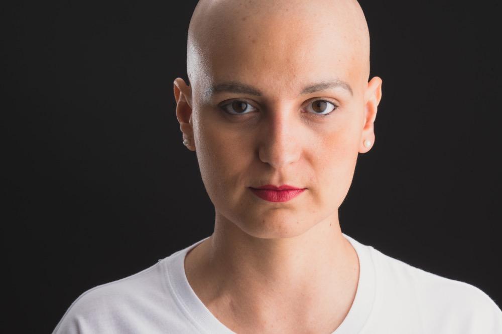 Imagen de Marta sin pelo a causa del tratamiento por el cáncer de mama